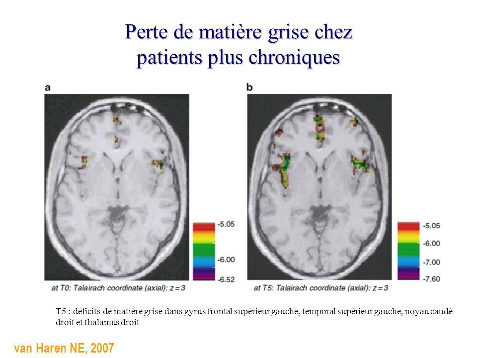 Perte de matière grise chez patients plus chroniques