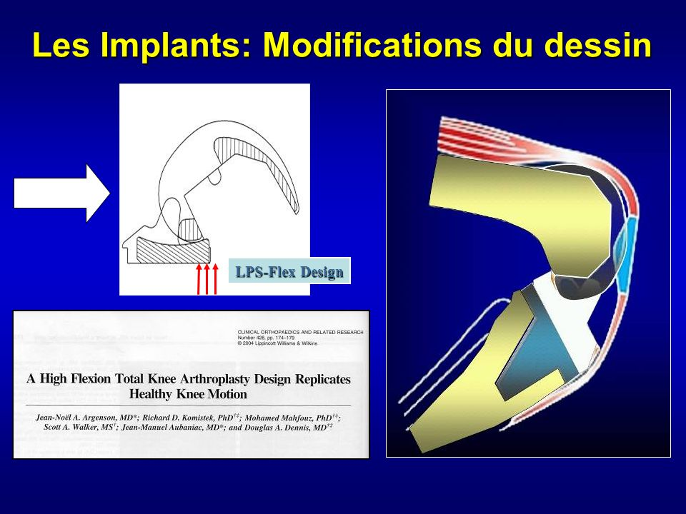 Les Implants: Modifications du dessin