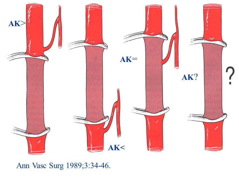 AK> AK= AK AK< Ann Vasc Surg 1989;3:34-46.