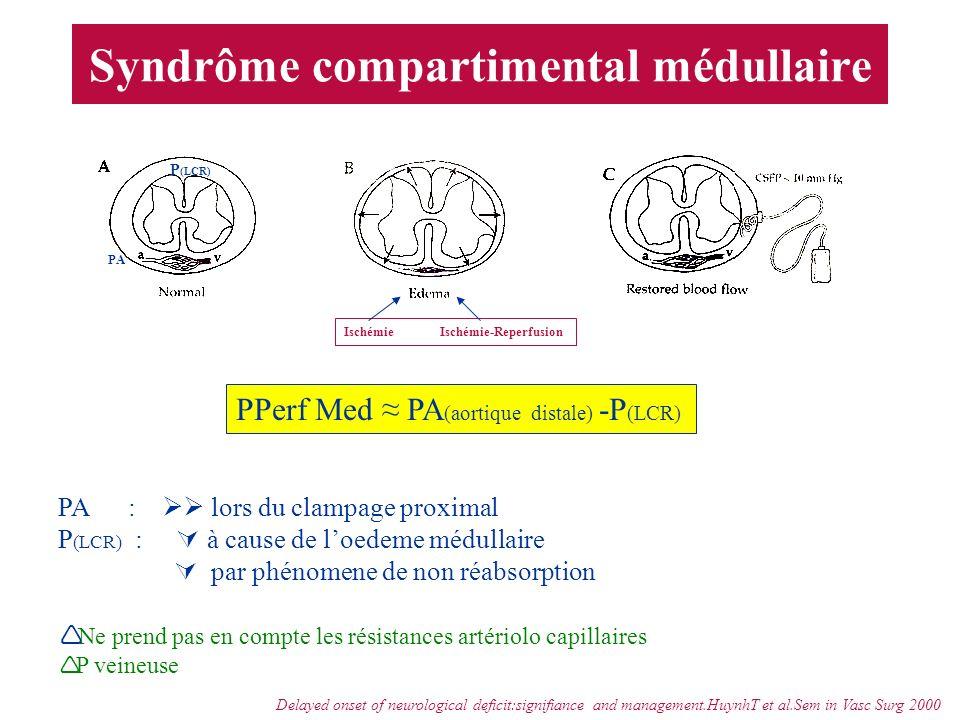 Syndrôme compartimental médullaire