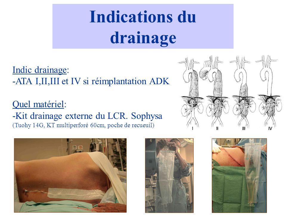 Indications du drainage
