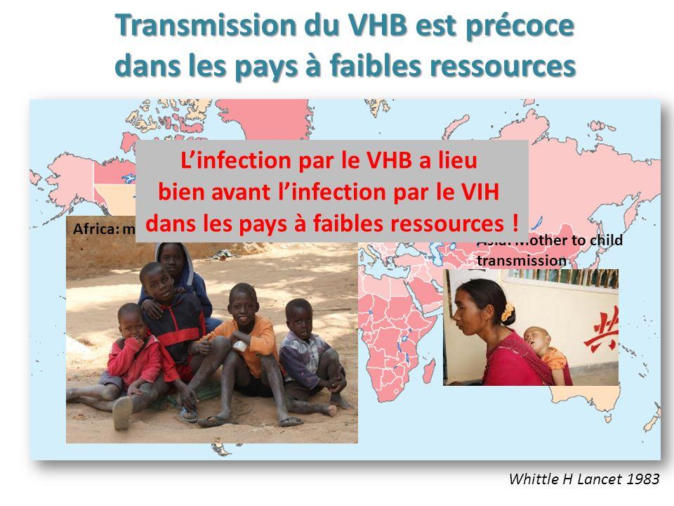 Transmission du VHB est précoce dans les pays à faibles ressources
