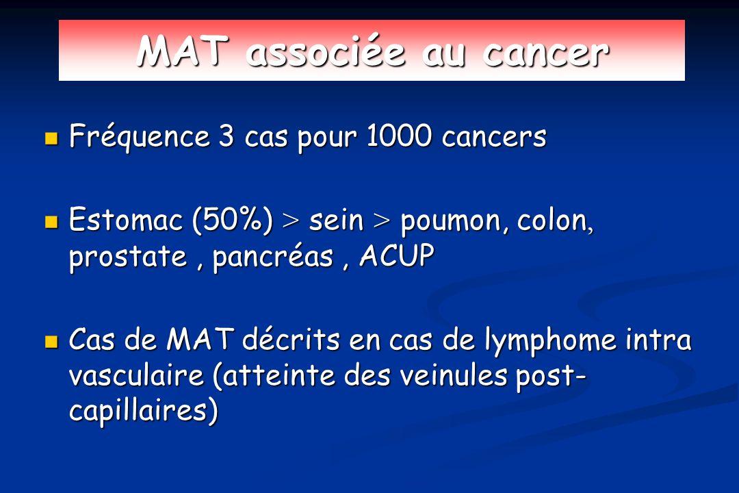 MAT associée au cancer Fréquence 3 cas pour 1000 cancers