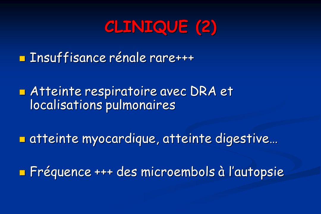 CLINIQUE (2) Insuffisance rénale rare+++