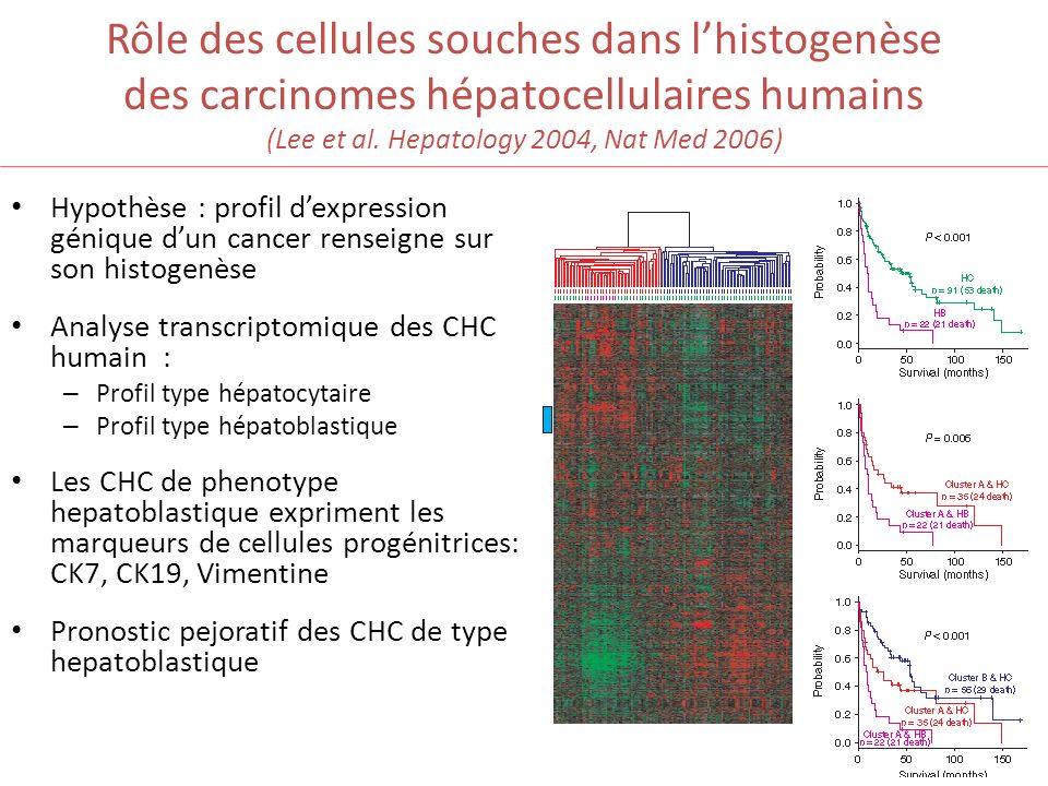Rôle des cellules souches dans l'histogenèse des carcinomes hépatocellulaires humains (Lee et al. Hepatology 2004, Nat Med 2006)