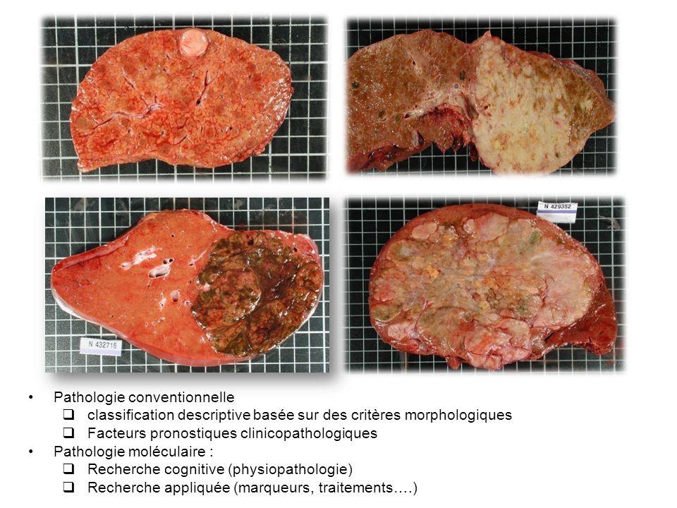 Pathologie conventionnelle