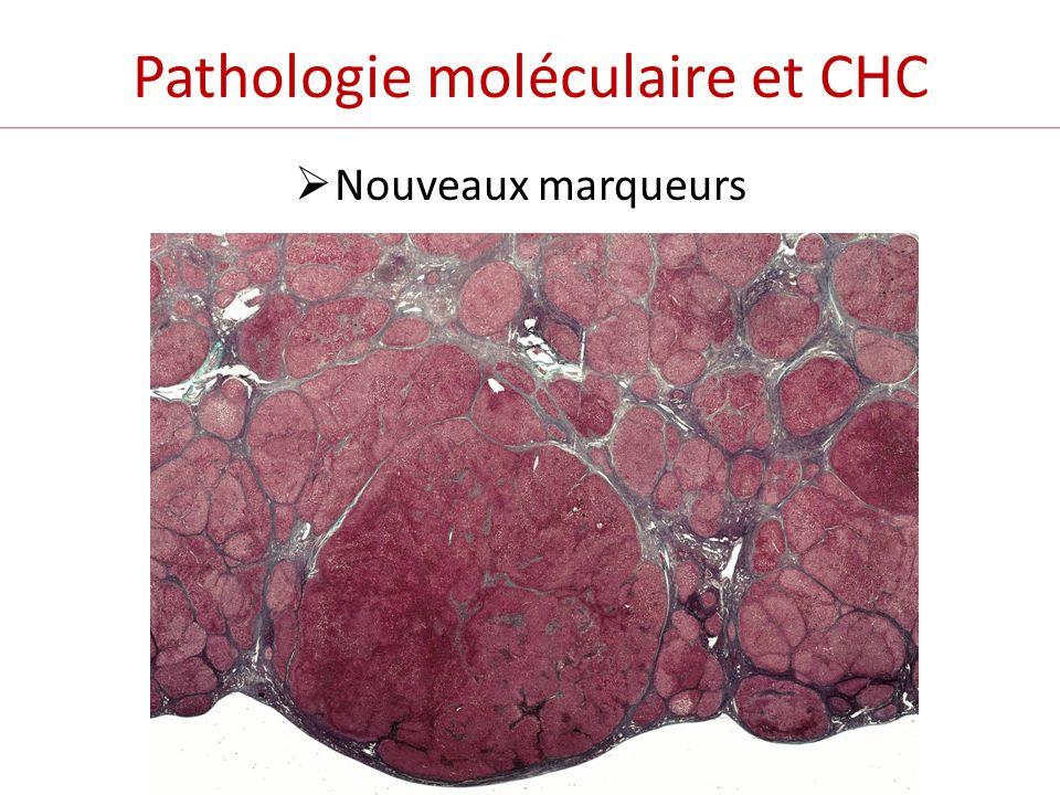 Pathologie moléculaire et CHC