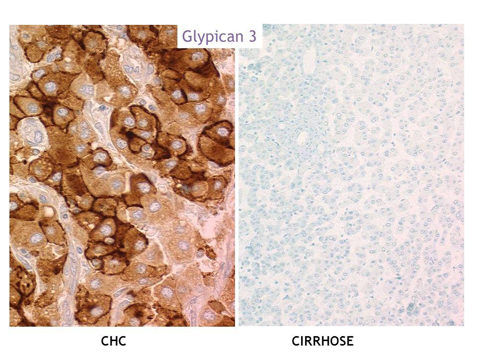 Glypican 3 CHC CIRRHOSE