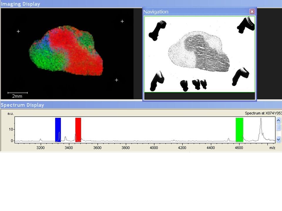MALDI – Imaging in HCC Global immunohistochemistry without antibody