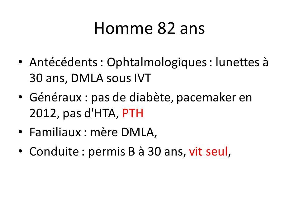 Homme 82 ans Antécédents : Ophtalmologiques : lunettes à 30 ans, DMLA sous IVT. Généraux : pas de diabète, pacemaker en 2012, pas d HTA, PTH.