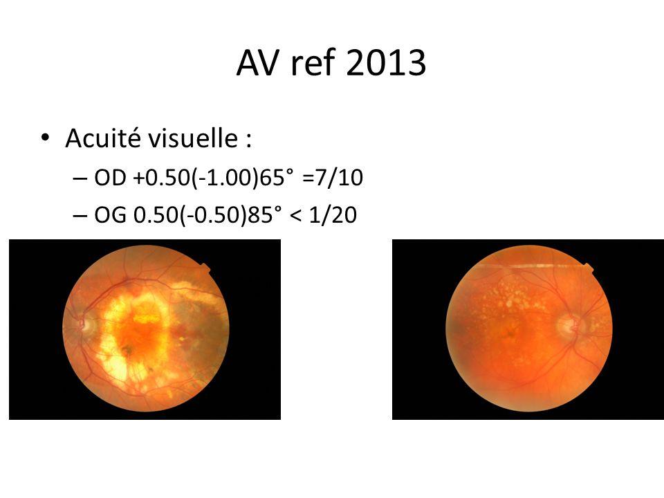 AV ref 2013 Acuité visuelle : OD +0.50(-1.00)65° =7/10