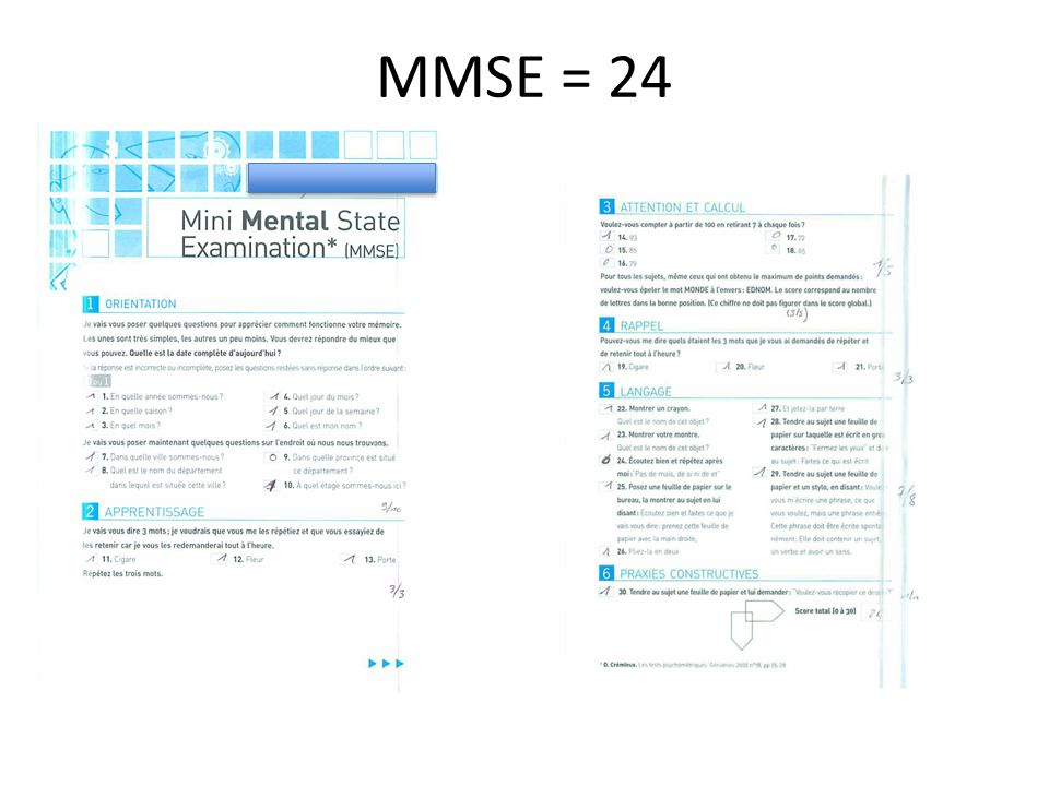 MMSE = 24