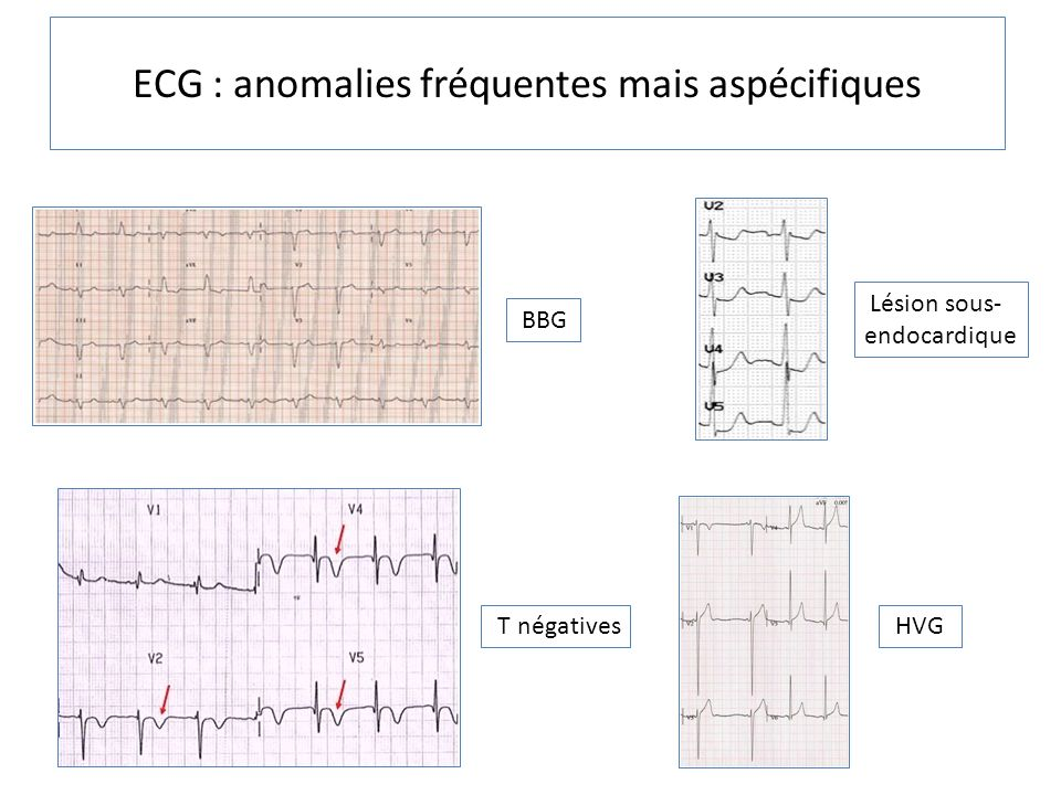 ECG : anomalies fréquentes mais aspécifiques