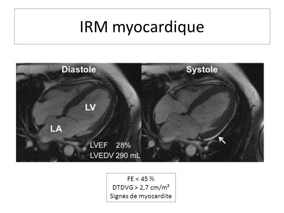 IRM myocardique FE < 45 % DTDVG > 2,7 cm/m² Signes de myocardite