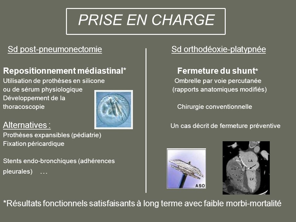 PRISE EN CHARGE Sd post-pneumonectomie Sd orthodéoxie-platypnée