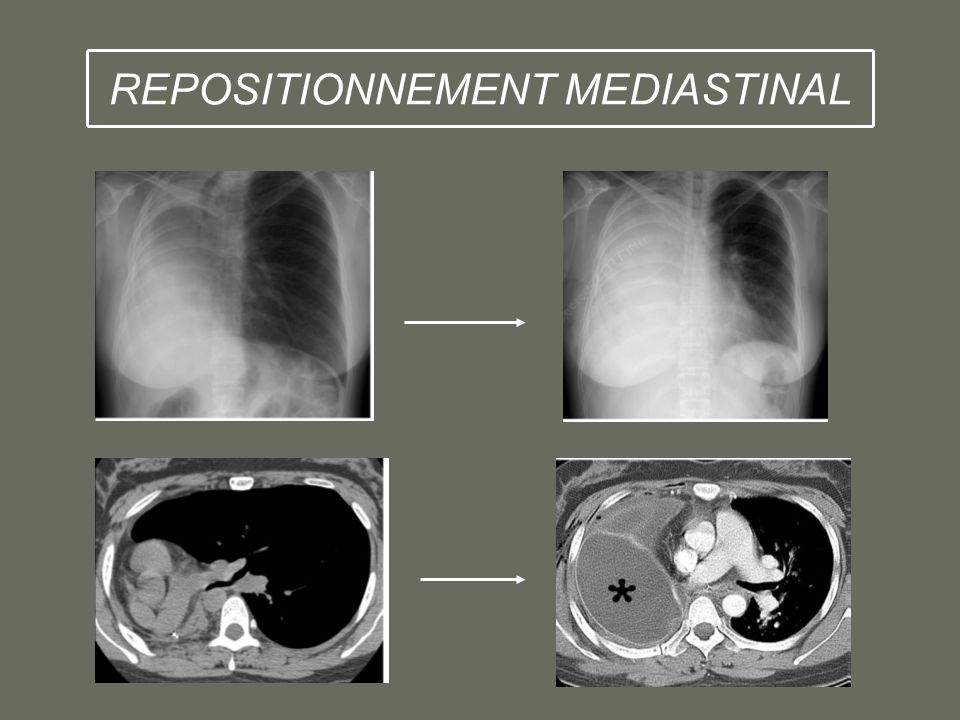 REPOSITIONNEMENT MEDIASTINAL