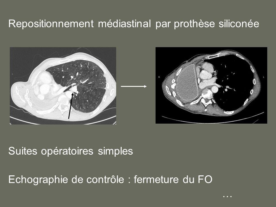 Repositionnement médiastinal par prothèse siliconée