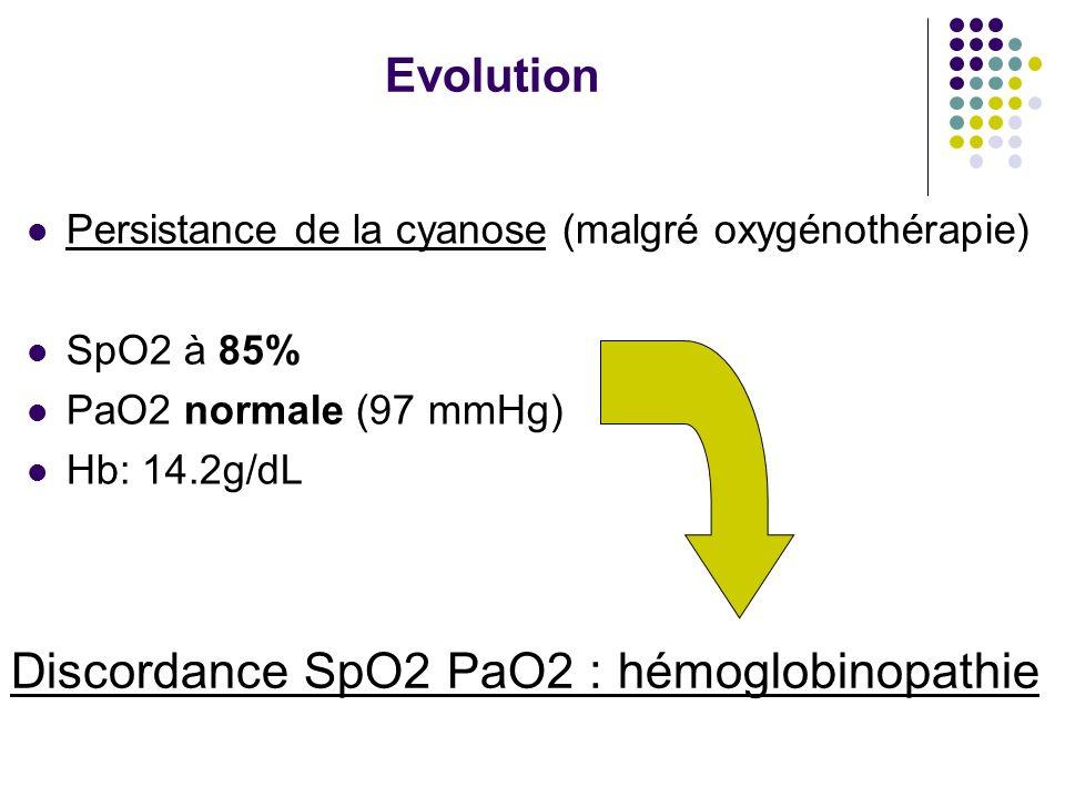 Discordance SpO2 PaO2 : hémoglobinopathie