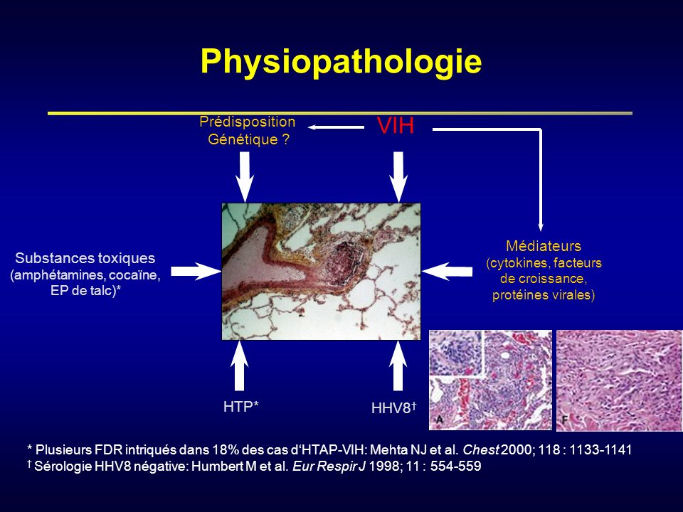 Physiopathologie VIH Prédisposition Génétique