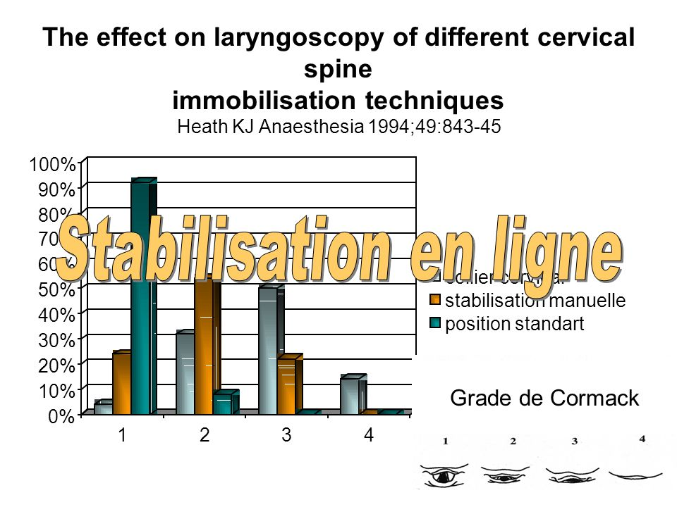 The effect on laryngoscopy of different cervical spine