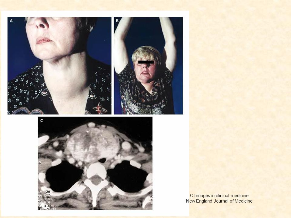 Cf images in clinical medicine New England Journal of Medicine