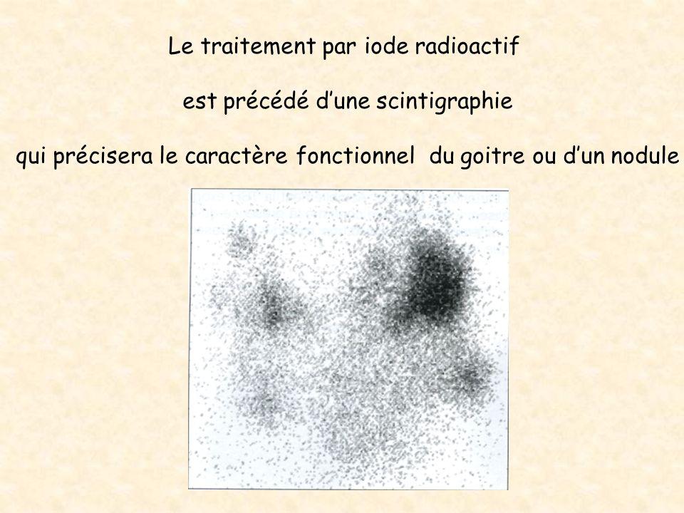 Le traitement par iode radioactif est précédé d'une scintigraphie
