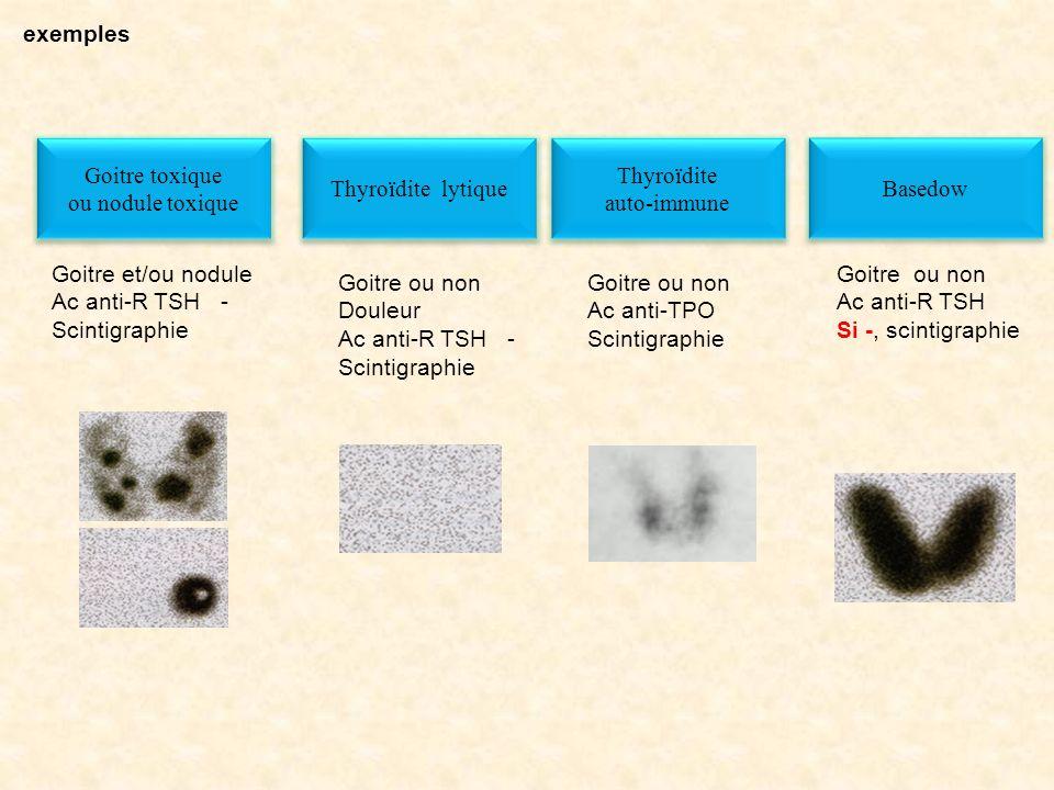 exemples Goitre toxique. ou nodule toxique. Goitre et/ou nodule. Ac anti-R TSH - Scintigraphie.
