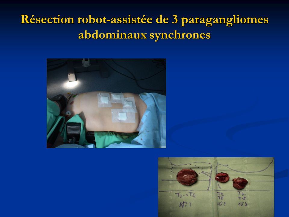 Résection robot-assistée de 3 paragangliomes abdominaux synchrones