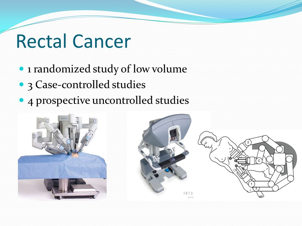 Rectal Cancer 1 randomized study of low volume