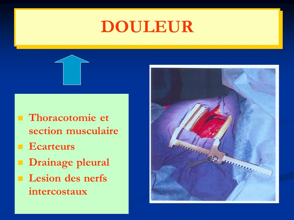 DOULEUR Thoracotomie et section musculaire Ecarteurs Drainage pleural