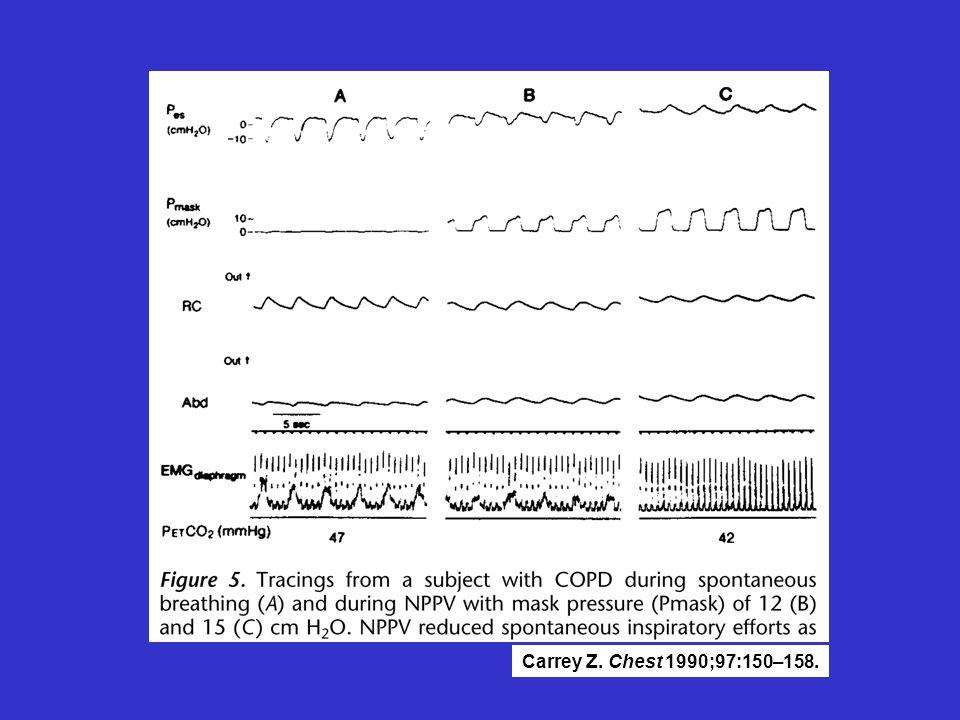 Tracé de BPCO en ventilation spontanée, VNI IPAP à12 cm et IPAP à 15 cm. La VNI réduit l'effort spontané = EMG, les pressions oesophagienne sont uniquement positives et synchronisation thoraco-abdominale.