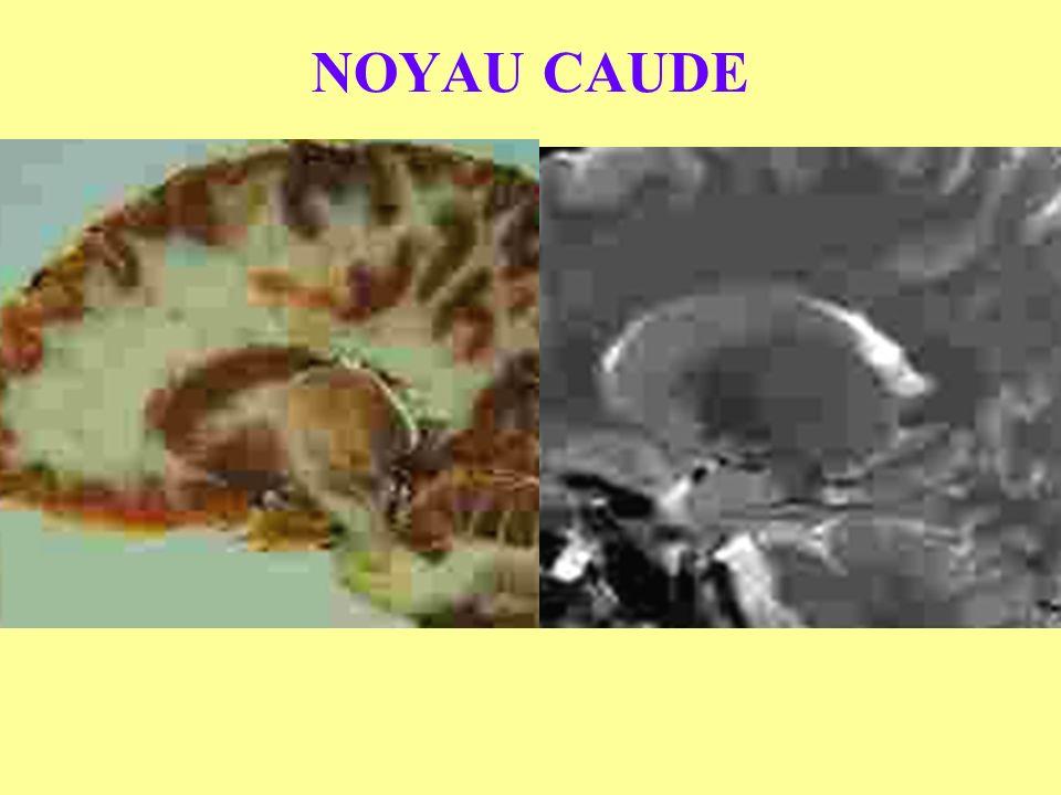NOYAU CAUDE