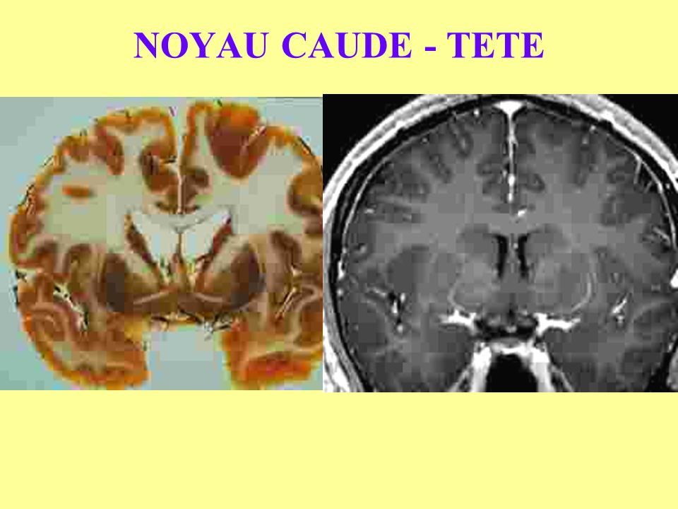 NOYAU CAUDE - TETE