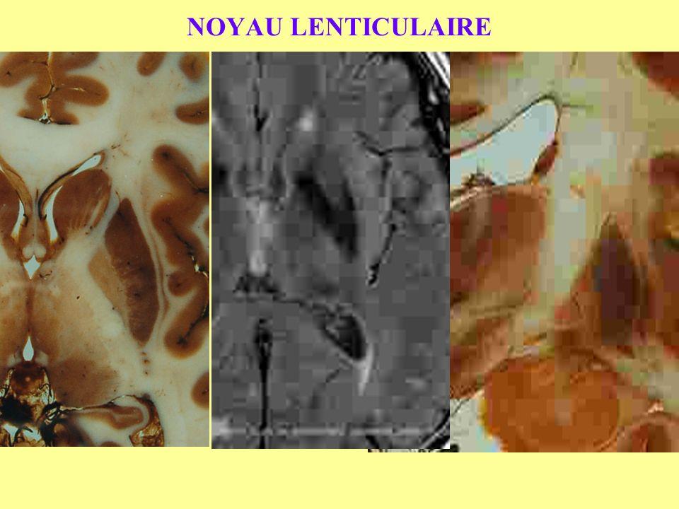 NOYAU LENTICULAIRE