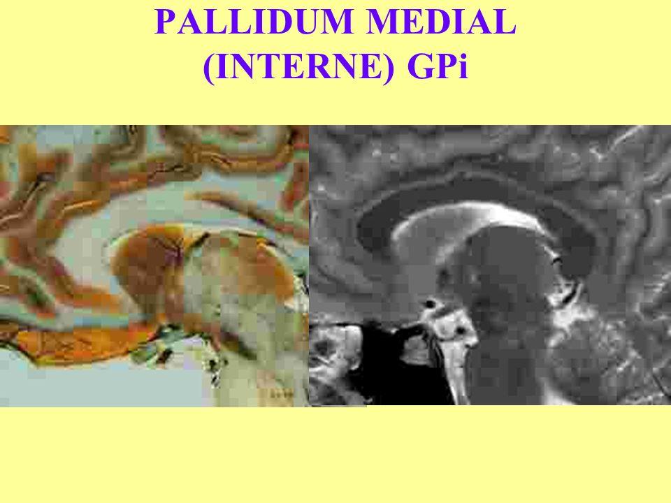 PALLIDUM MEDIAL (INTERNE) GPi