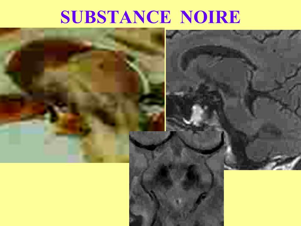 SUBSTANCE NOIRE