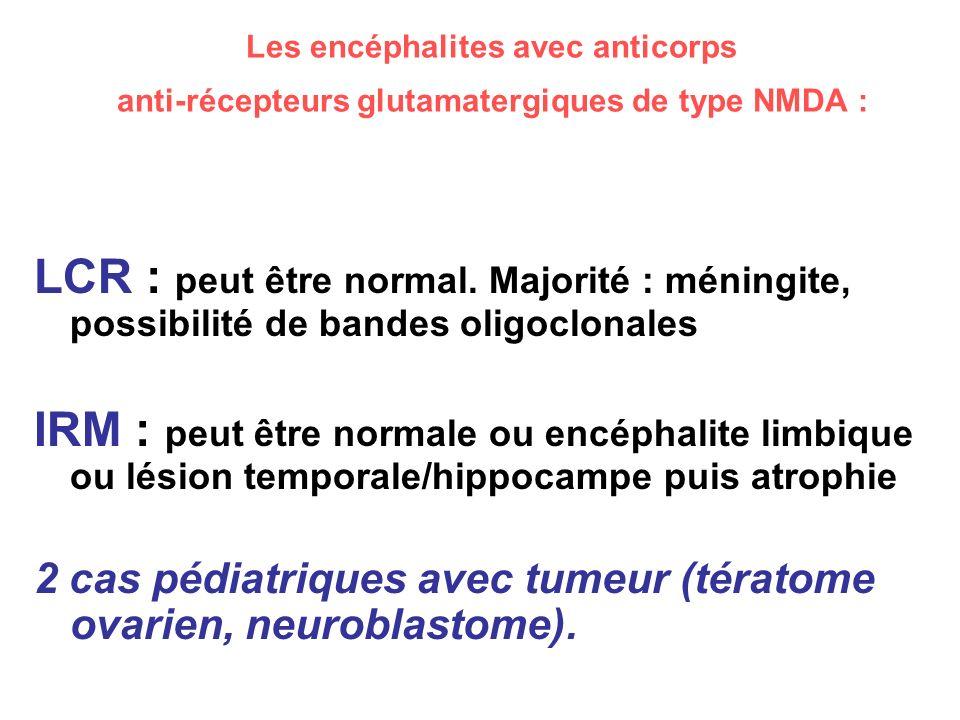 Les encéphalites avec anticorps anti-récepteurs glutamatergiques de type NMDA :