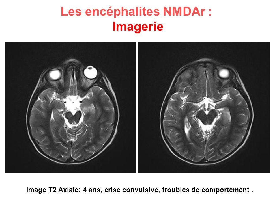 Image T2 Axiale: 4 ans, crise convulsive, troubles de comportement .