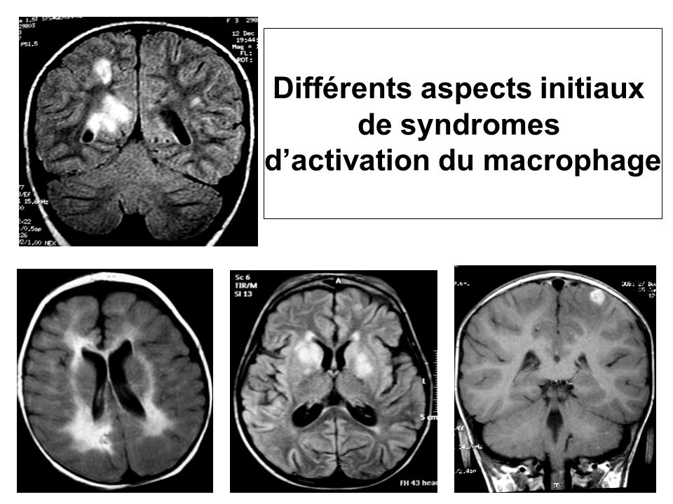 Différents aspects initiaux d'activation du macrophage