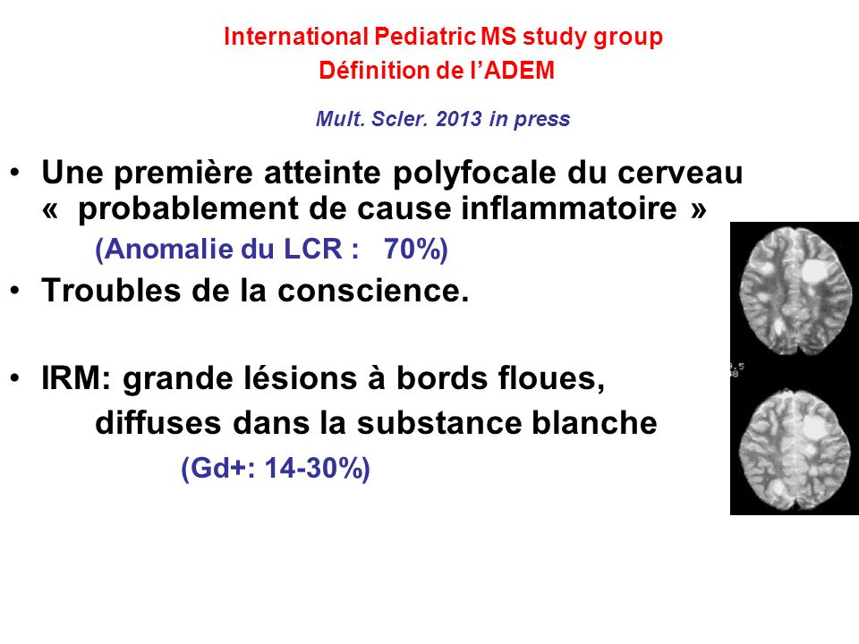 International Pediatric MS study group Définition de l'ADEM Mult. Scler. 2013 in press
