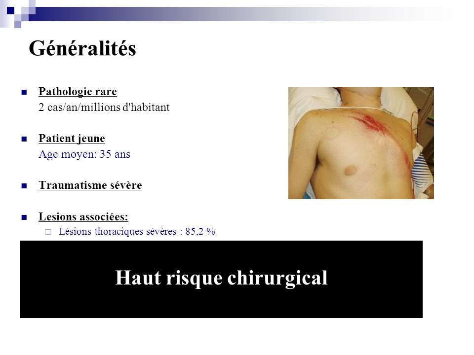 Haut risque chirurgical