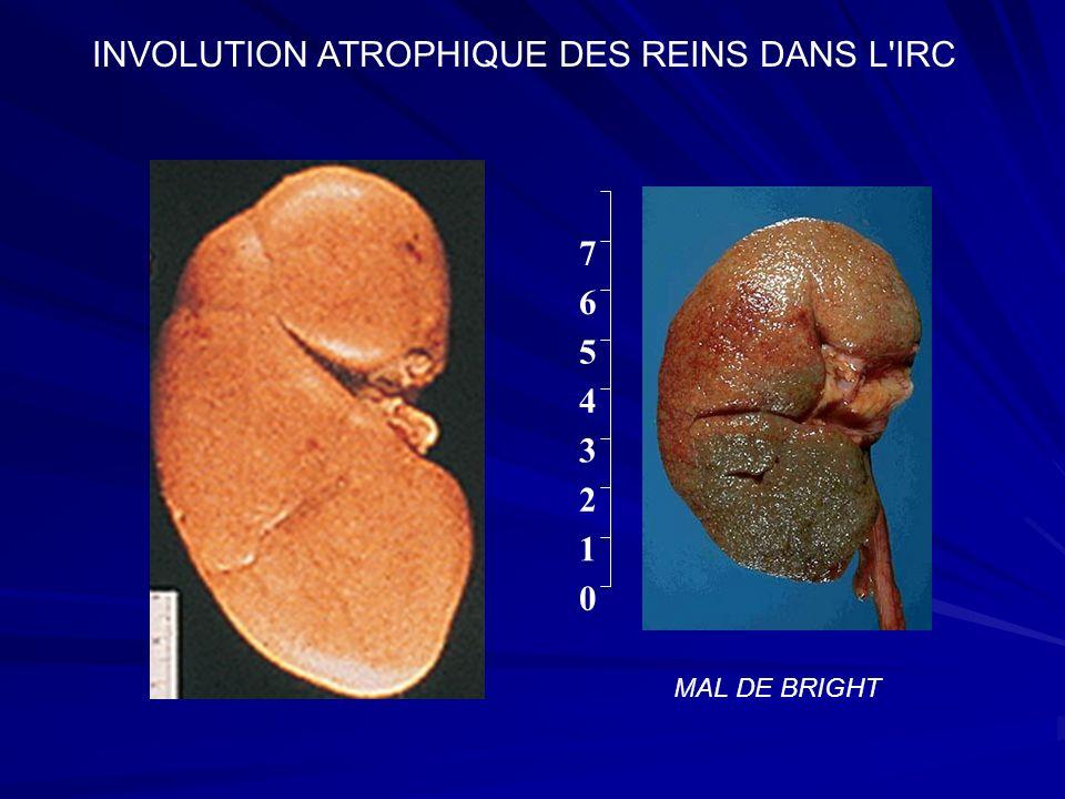 INVOLUTION ATROPHIQUE DES REINS DANS L IRC