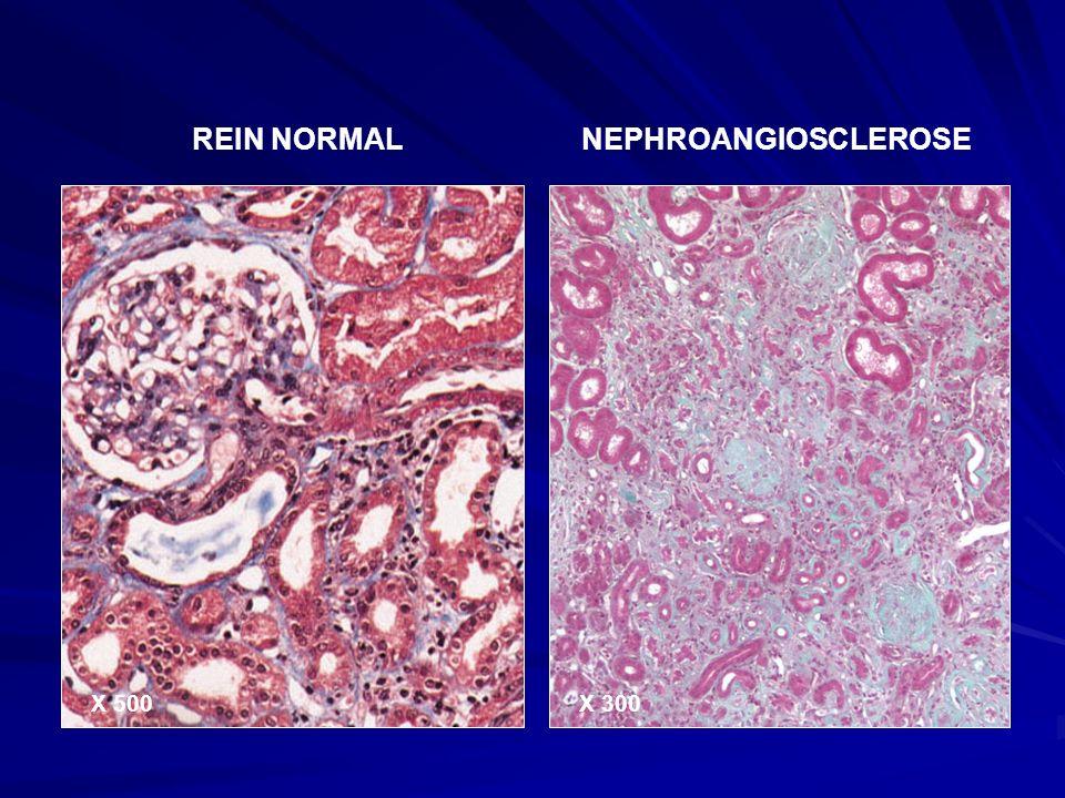 REIN NORMAL NEPHROANGIOSCLEROSE