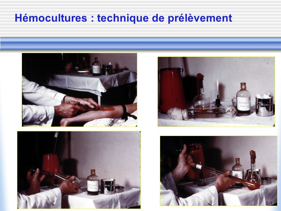 Hémocultures : technique de prélèvement