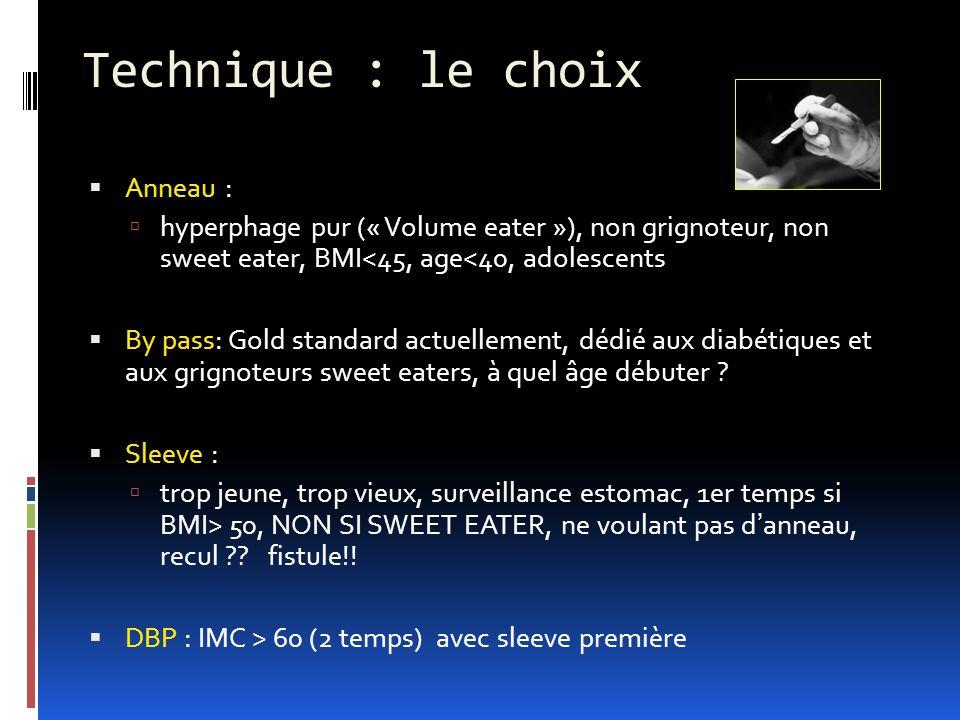 Technique : le choix Anneau :