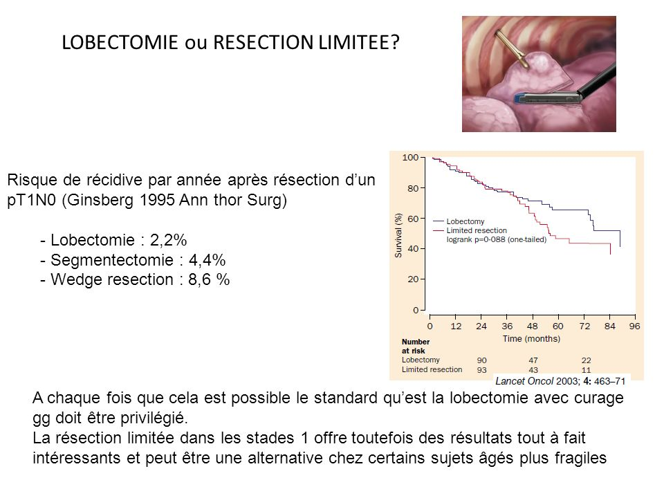 LOBECTOMIE ou RESECTION LIMITEE