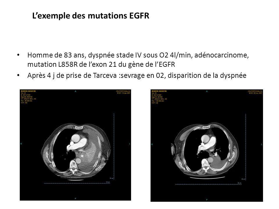 L'exemple des mutations EGFR
