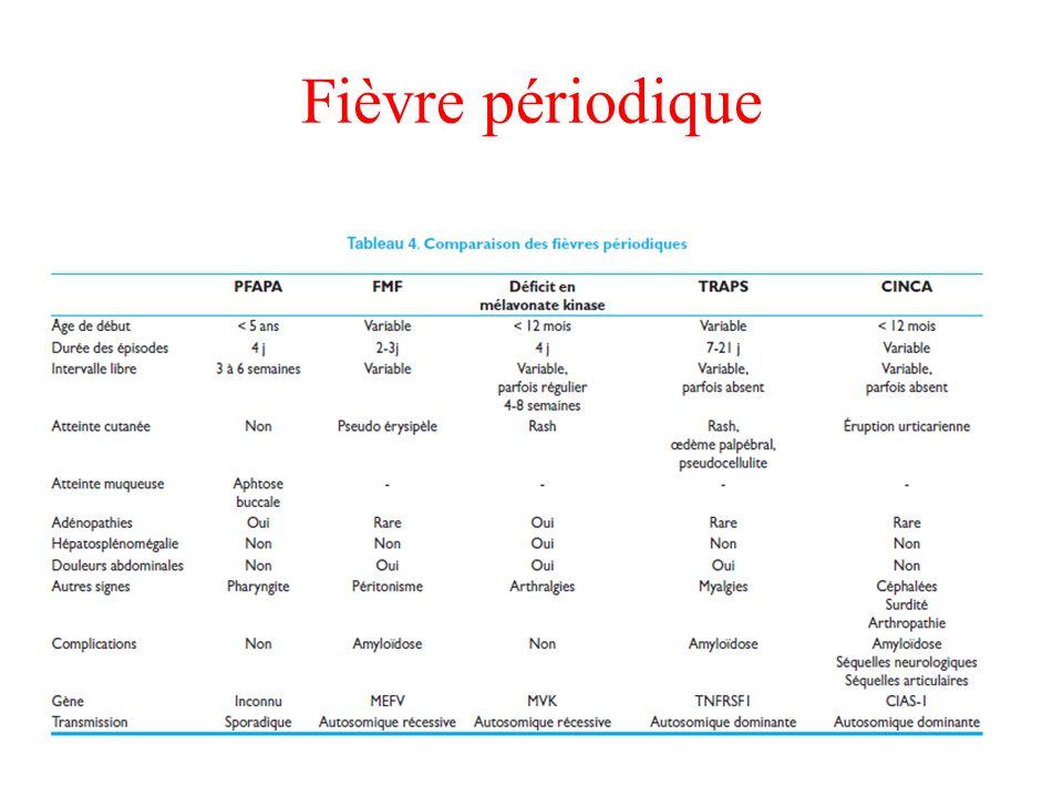 Fièvre périodique