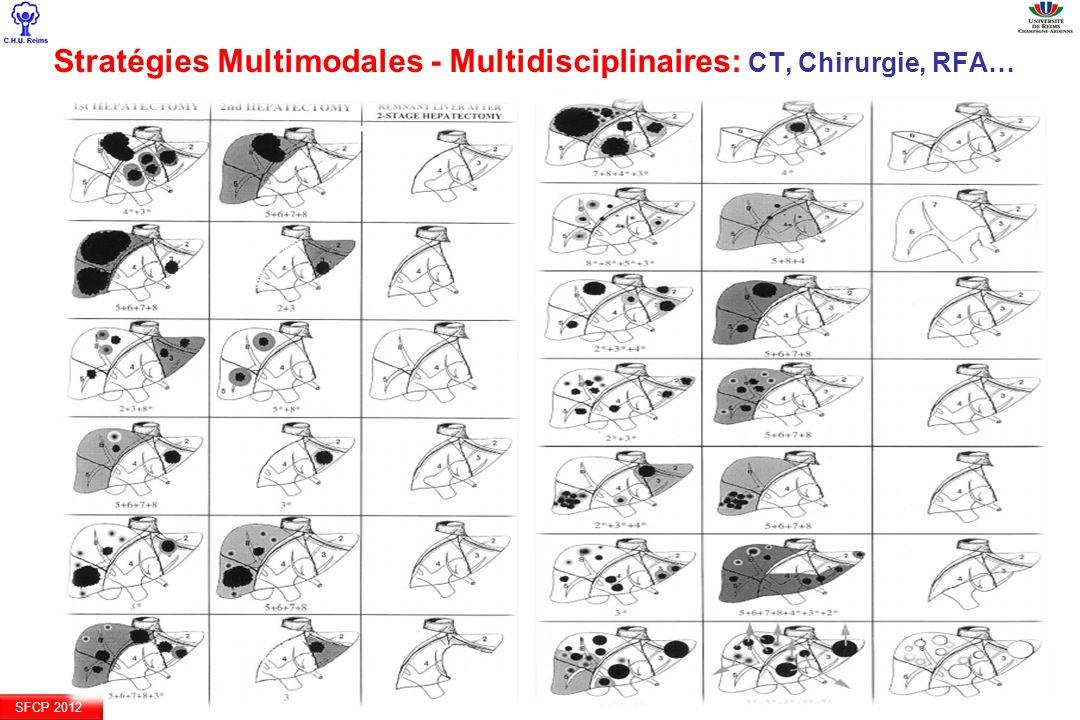 Stratégies Multimodales - Multidisciplinaires: CT, Chirurgie, RFA…