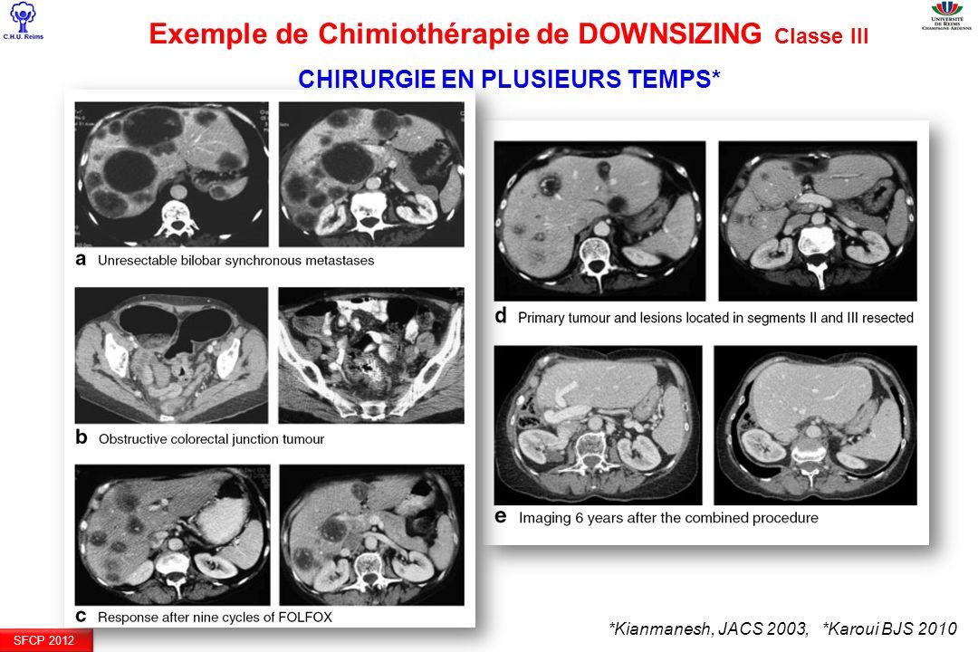 Exemple de Chimiothérapie de DOWNSIZING Classe III